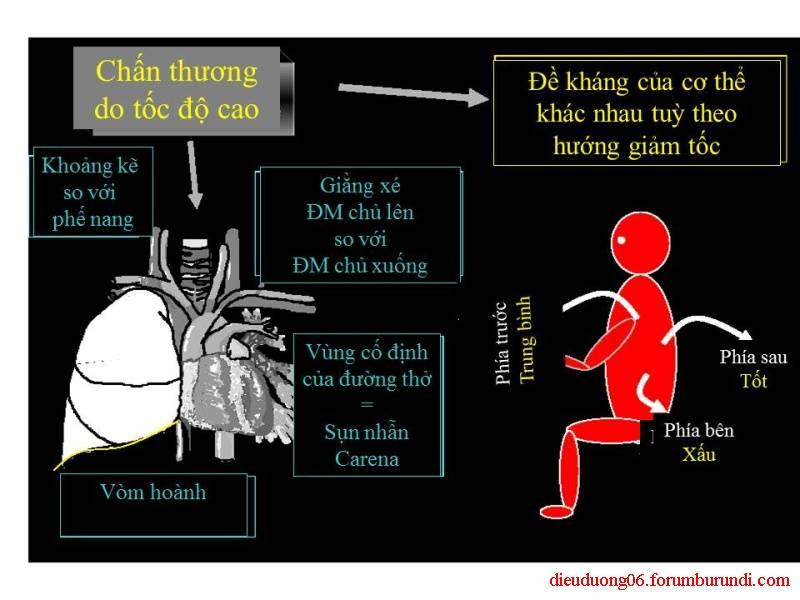 Chấn thương ngực nặng-Đa chấn thương Slide21