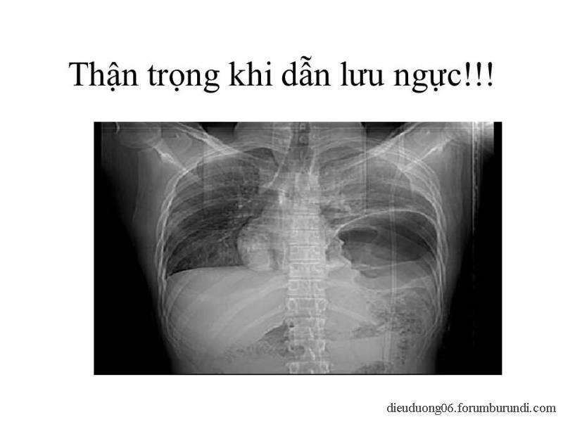 Chấn thương ngực nặng-Đa chấn thương Slide27