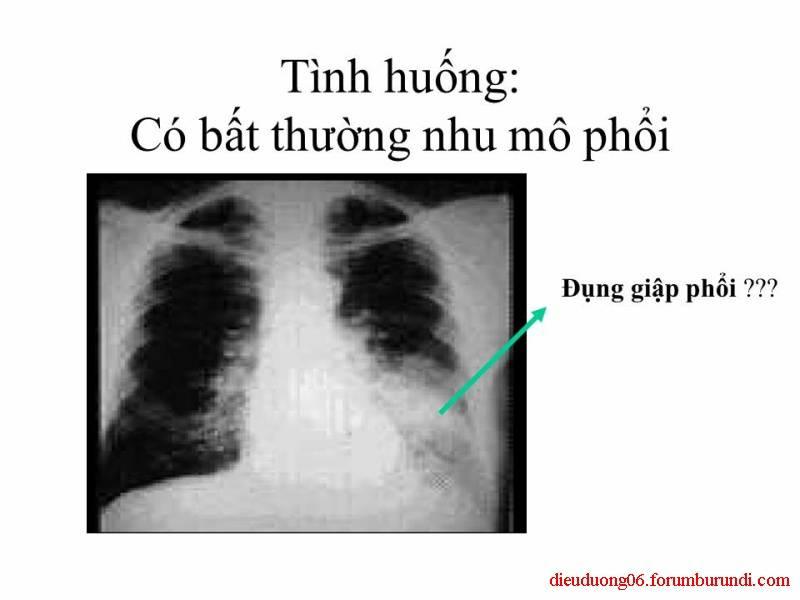 Chấn thương ngực nặng-Đa chấn thương Slide28