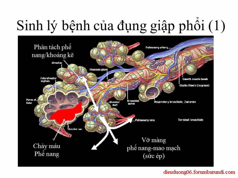 Chấn thương ngực nặng-Đa chấn thương Slide29