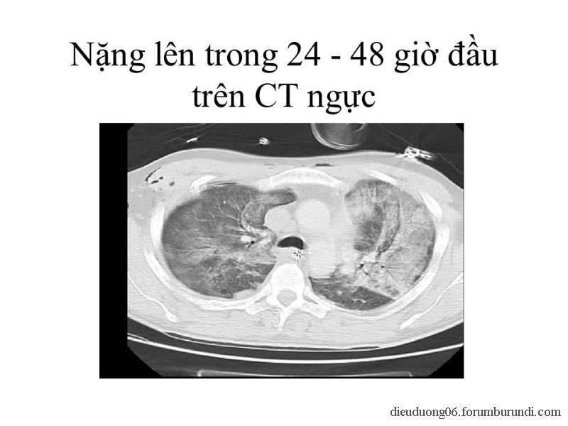Chấn thương ngực nặng-Đa chấn thương Slide34