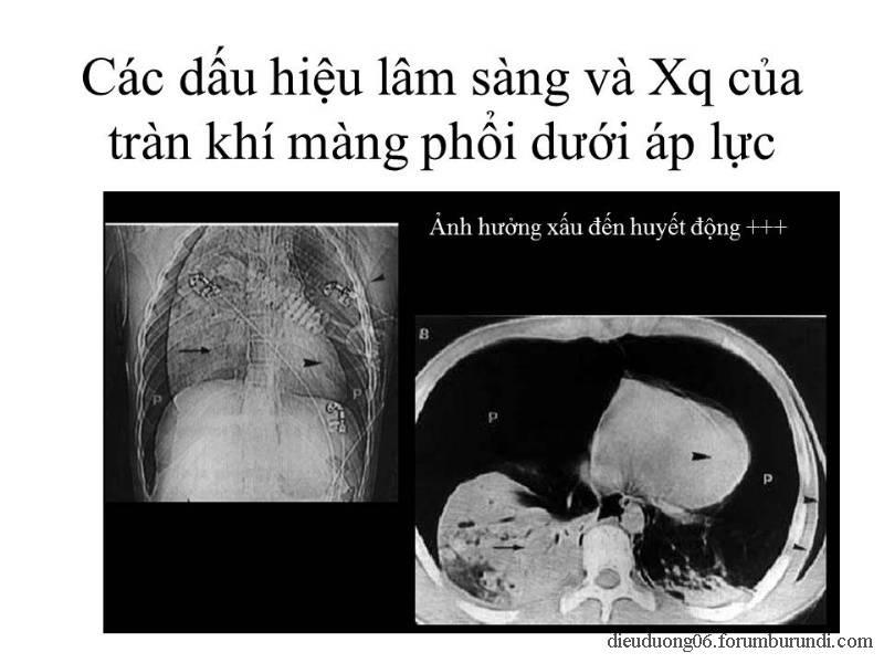 Chấn thương ngực nặng-Đa chấn thương Slide48