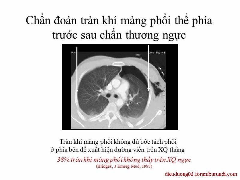 Chấn thương ngực nặng-Đa chấn thương Slide49