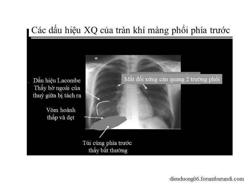 Chấn thương ngực nặng-Đa chấn thương Slide50