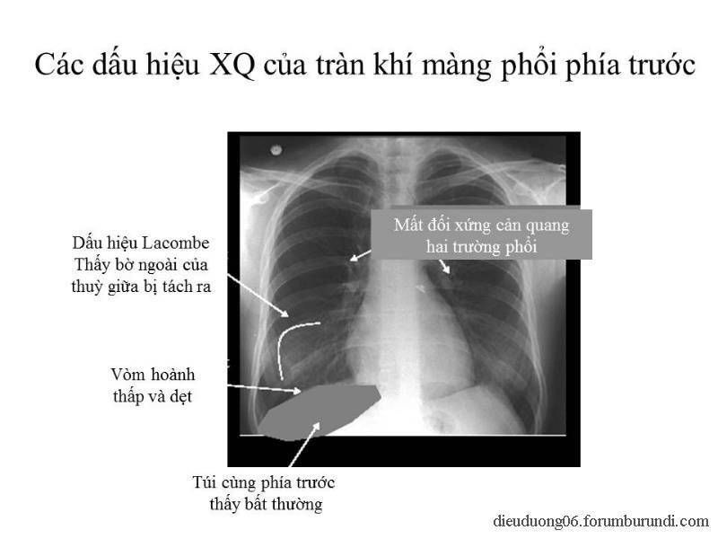 Chấn thương ngực nặng-Đa chấn thương Slide51