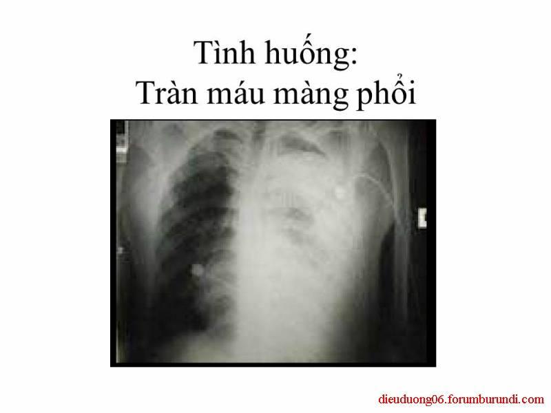 Chấn thương ngực nặng-Đa chấn thương Slide53