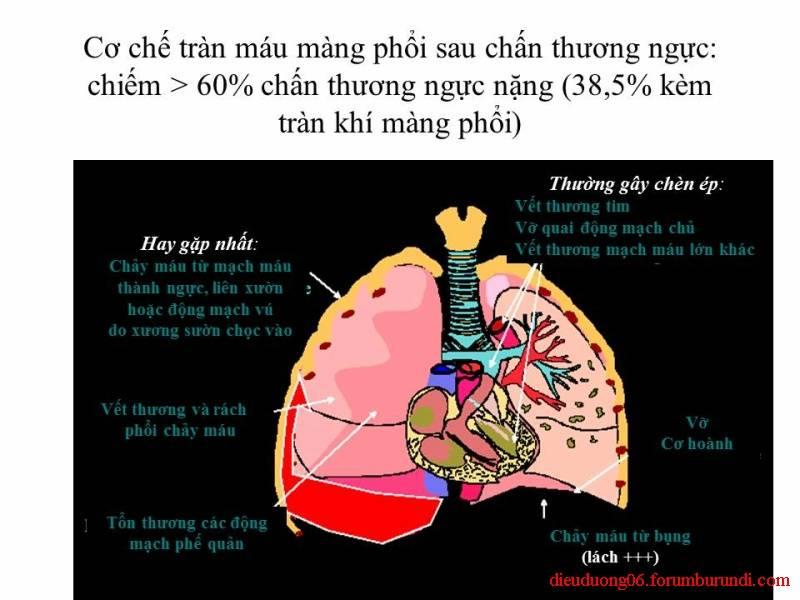Chấn thương ngực nặng-Đa chấn thương Slide54