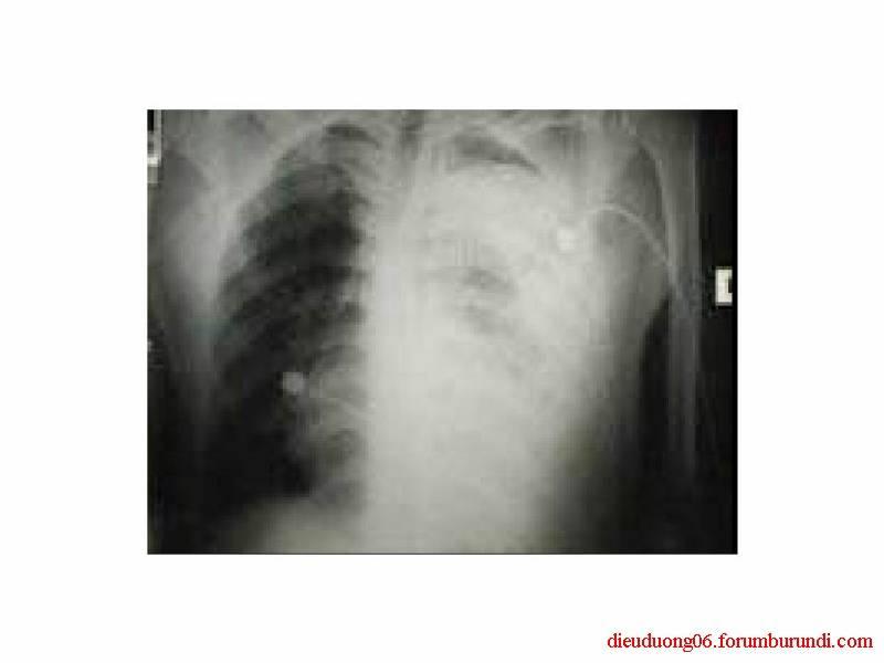 Chấn thương ngực nặng-Đa chấn thương Slide9