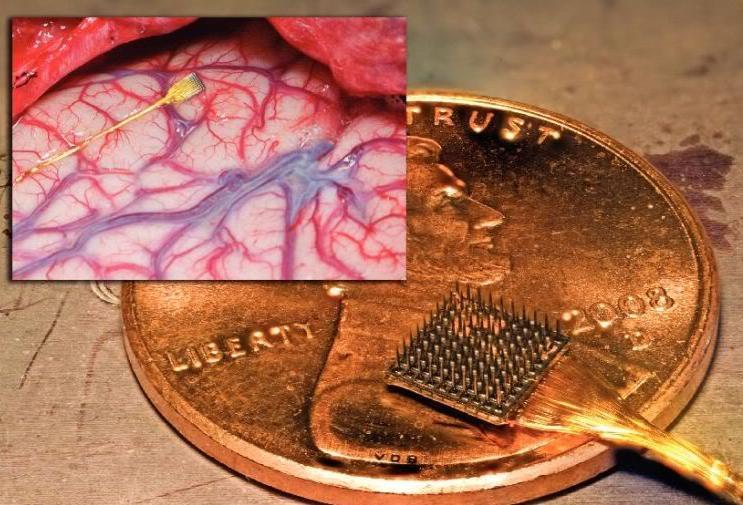 2013-2016 : 666, PUCES IMPLANTABLES, RFID, NANOTECHNOLOGIES, NEUROSCIENCES, N.B.I.C., TRANSHUMANISME ET CYBERNETIQUE ! - Page 2 Brainchipimplant_cr_zps2c1ffe19