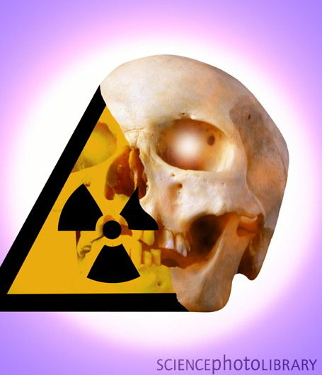 DEPOPULATION VIA LA TECHNOLOGIE NUCLEAIRE - Page 2 Radiation_death