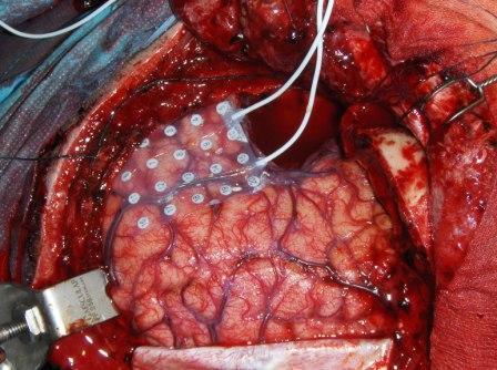 2013-2016 : 666, PUCES IMPLANTABLES, RFID, NANOTECHNOLOGIES, NEUROSCIENCES, N.B.I.C., TRANSHUMANISME ET CYBERNETIQUE ! - Page 4 Brainchip_surgery2_zpsef78014f