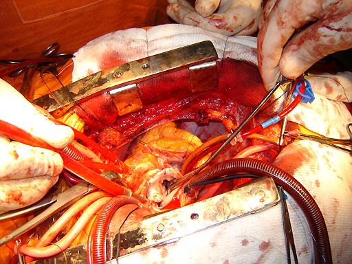 LFM2. CAPITULO 16 Cirugia_cardio_12_zpsa017dbb1