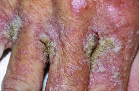 Phương pháp điều trị hiệu quả bệnh nhiệt miệng Diungximang-1