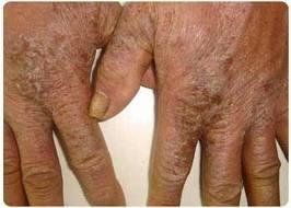 Phương pháp điều trị hiệu quả bệnh nhiệt miệng Diungximang5