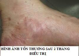 Bệnh Chàm (eczema)-phương pháp điều trị hiệu quả Eczema31