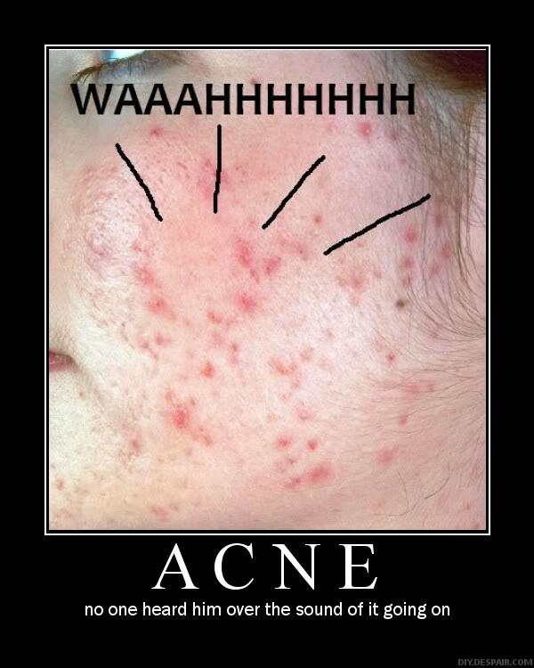 THE MASSIVE GALLERY OF FANART - Page 3 Acne