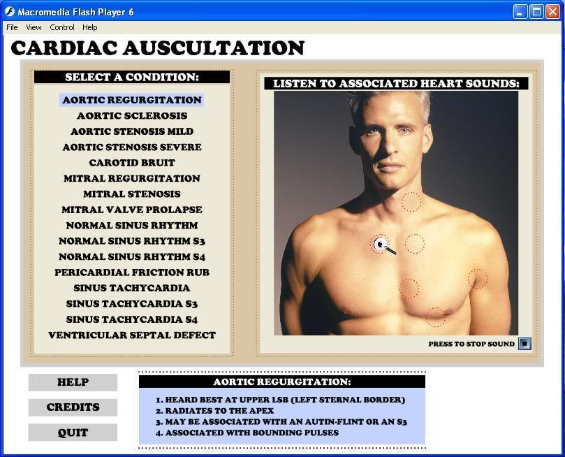 برامج اصوات القلب ... رائعة و مفيدة Cardiac_auscultation