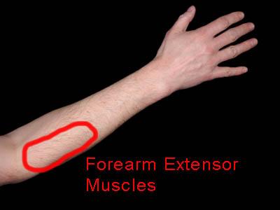 Forearm tendonitis? Forearm_extensor_400