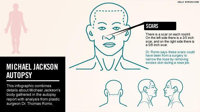 Referto ufficiale dell'autopsia (08 febbraio 2010) pdf Mj_autopsy110311_03