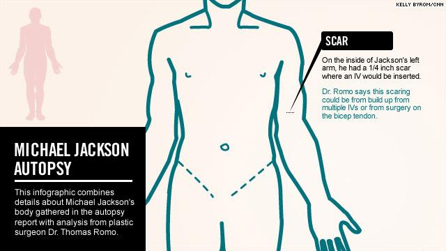 Referto ufficiale dell'autopsia (08 febbraio 2010) pdf Mj_autopsy110311_04