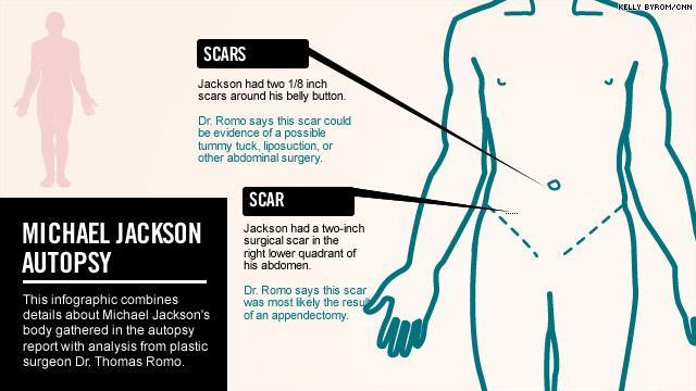 Referto ufficiale dell'autopsia (08 febbraio 2010) pdf Mj_autopsy110311_06