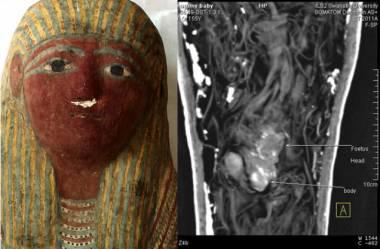 Sarcófago egipcio se encuentran restos de un feto E_feto-momificado