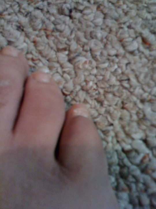 Sweet merciful crap! BrokenToe
