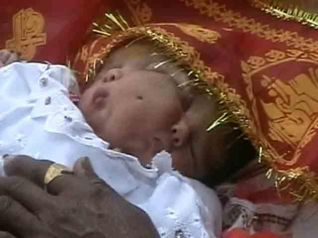 Baby Born with Two Faces; Worshipped as God Babytwofaces