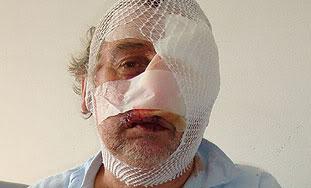 Dvor: vučica koja je napala dvije osobe bila je bijesna Milanbodlovic