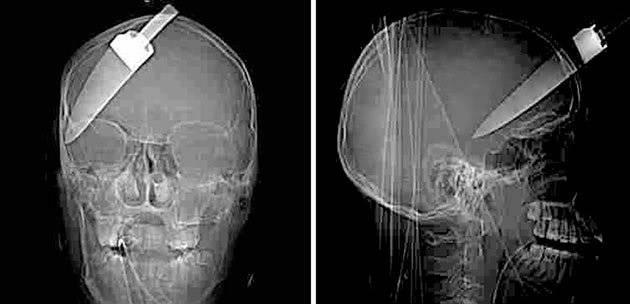 The World'sMost Shocking X-rays Photos  Shocking-X-rays-220911-14_044314