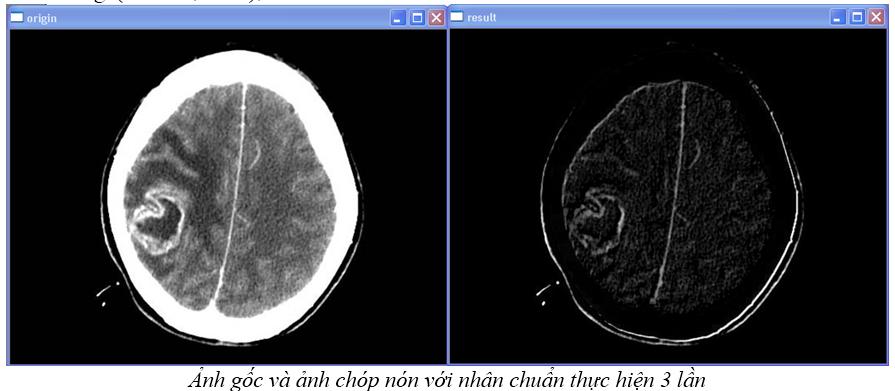 Xử lý ảnh theo hình thái (OpenCV.2.1) Anhchopnon