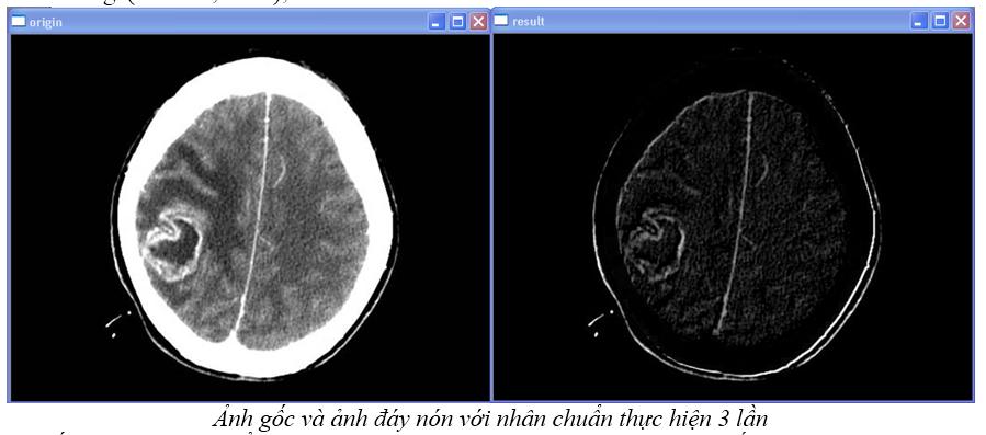 Xử lý ảnh theo hình thái (OpenCV.2.1) Anhdaynoin
