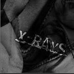 X-RAYS Type_b