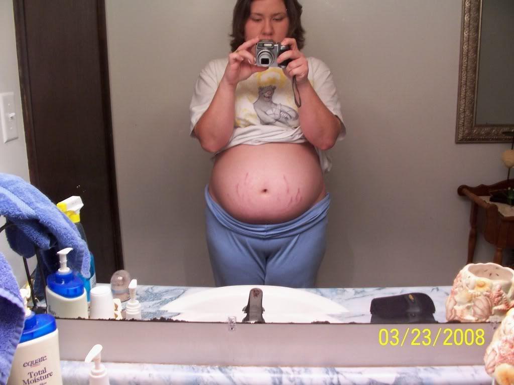 18 wk baby bump and u/s pics 015_15