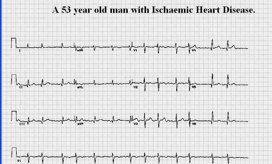 learn...and test your self in ECG with this software course ECG003