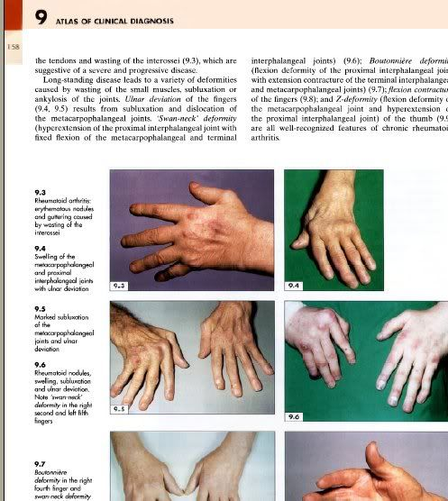 alot of usefull pictures u will found here in this atlas... Atlasofclinicaldiagnosis003