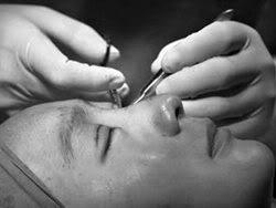 Phẫu Thuật Mắt PhauThuatmat-Vntvnd