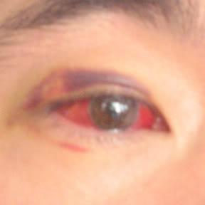 SAFETY FIRST Eye