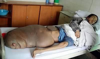DOCUMENTAL: Las 16 Malformaciones Humanas más Impresionantes. 10-tumor-en-la-pierna