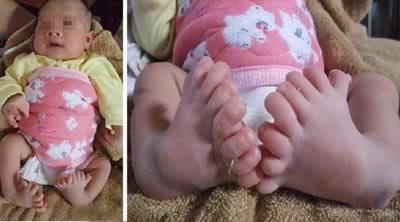 DOCUMENTAL: Las 16 Malformaciones Humanas más Impresionantes. 13-bebe-con-16-dedos