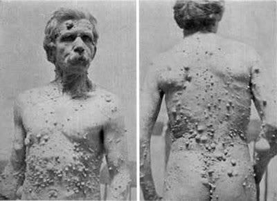 DOCUMENTAL: Las 16 Malformaciones Humanas más Impresionantes. 5-fibroma