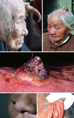 DOCUMENTAL: Las 16 Malformaciones Humanas más Impresionantes. 6-humanos-con-cuernos
