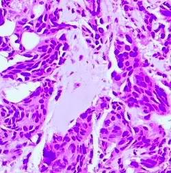 Learning through necropsies 19-Coagulativenecrosis-discoloured
