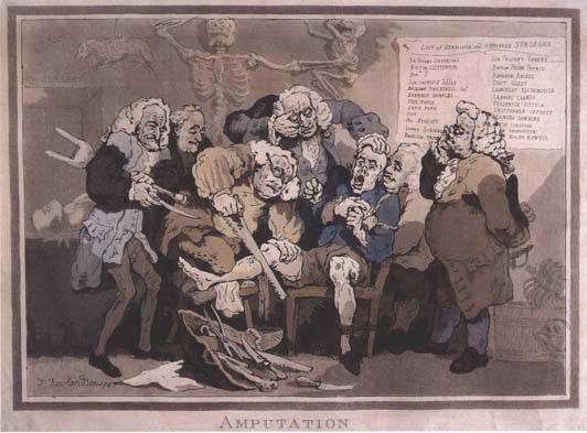 Los resurreccionistas y los medicos. Amputbot
