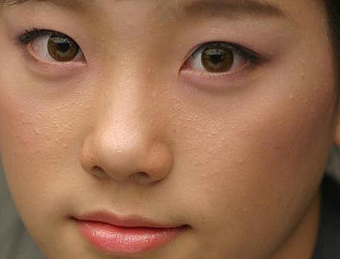 snsd natural+acne *O* Mostras5