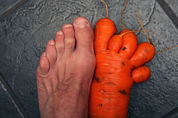 Can Anyone Help - I have a Teenager - Page 7 Carrot-foot-297831614
