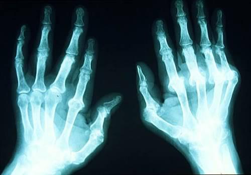 Ejercicios recomendados para la artritis Artritis_01