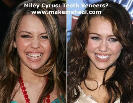 I want to cry Miley-cyrus-teeth-veneers