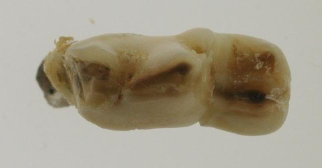 Dental work Top_molar_1