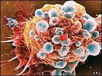 Lijek koji spriječava širenje raka _44323005_breast_cancer_cell_spl203